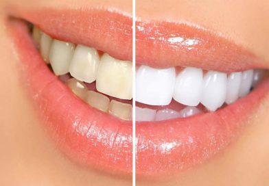 Blanqueamiento dental ambulatorio